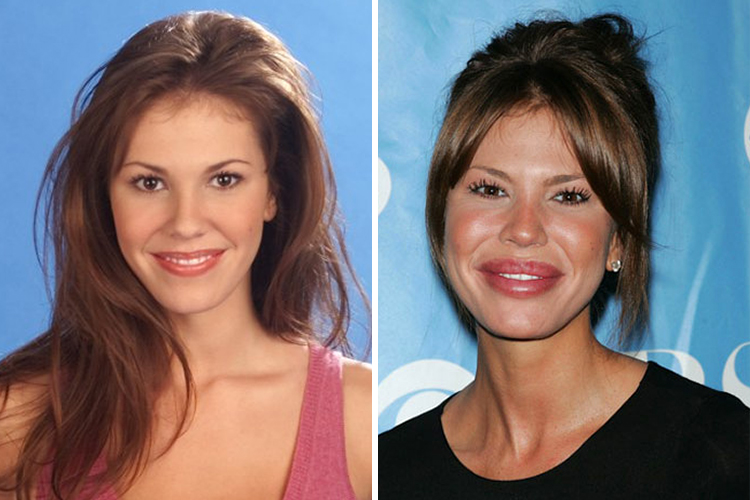 Nikki-Cox, Plastic surgery gone wrong, Plastic surgery fails, plastic surgery failures